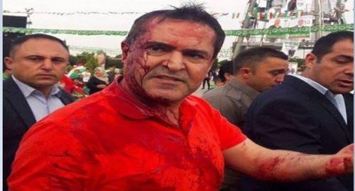 إصابة رئيس قائمة {الجيل الجديد} في أربيل بإعتداء دام