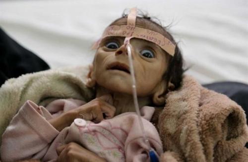 الأمم المتحدة: الجوع يهدد بموت 13 مليون شخص في اليمن
