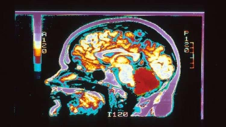 أوجه الاختلاف بين دماغ الرجل والمرأة!