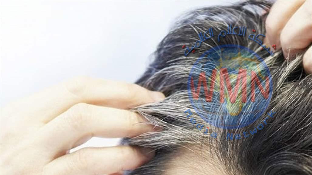 عادات خاطئة تسرع ظهور الشعر الأبيض في سن مبكرة