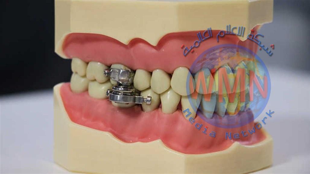"""""""قفل الأسنان"""".. علماء يطورون جهازا يمنع الأكل للقضاء على السمنة"""