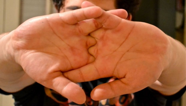 """علماء يفسرون """"فرقعة"""" الأصابع"""