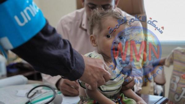 يونيسيف: 340 مليون طفل في العالم يعانون نقصاً غذائياً